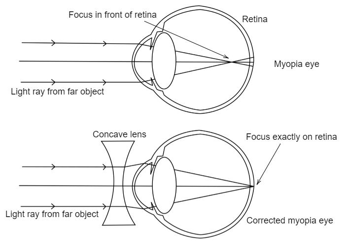 Myopia diagram class 10 Látótér kerületei