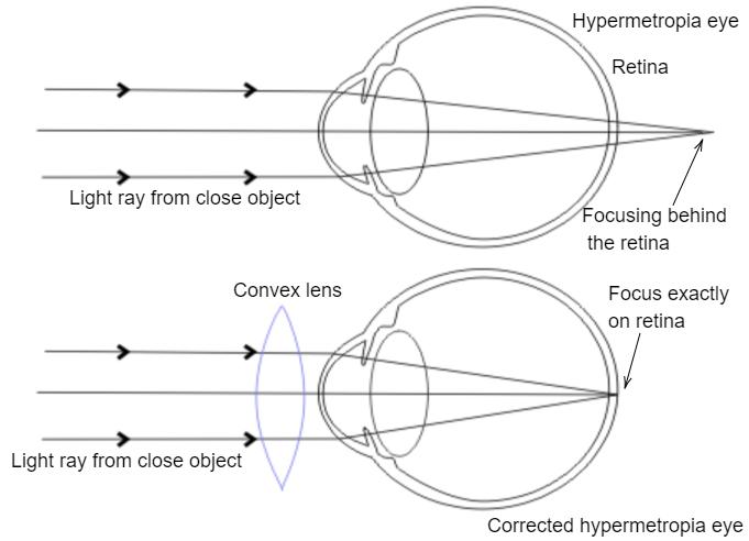 Myopia lens diagram